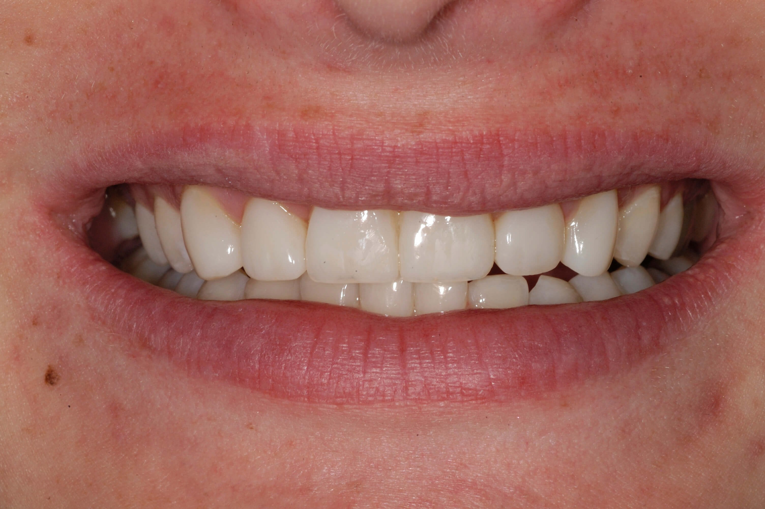 Cosmetic Bonding Makeover After