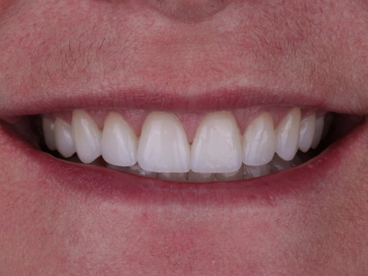 Beautiful porcelain veneers After
