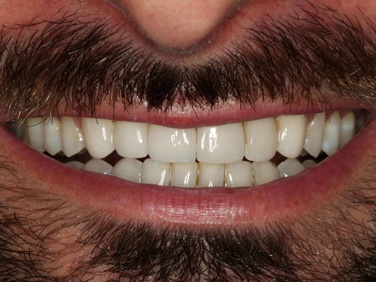 Closing gaps between teeth After